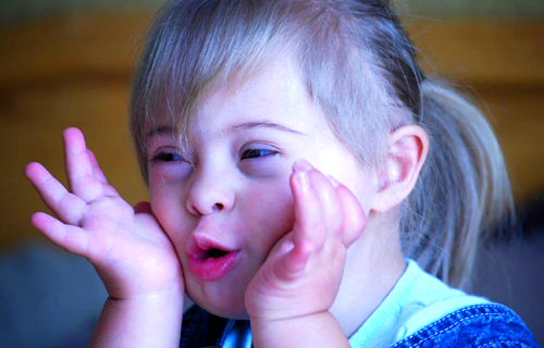 The Down Syndrome Association Gauteng (TDSAG)
